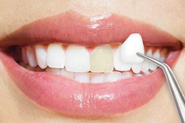 Bọc răng sứ tại đà nẵng