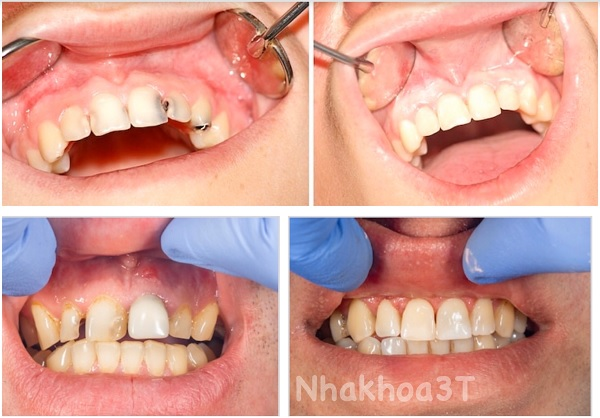 Trám răng tại đà nẵng