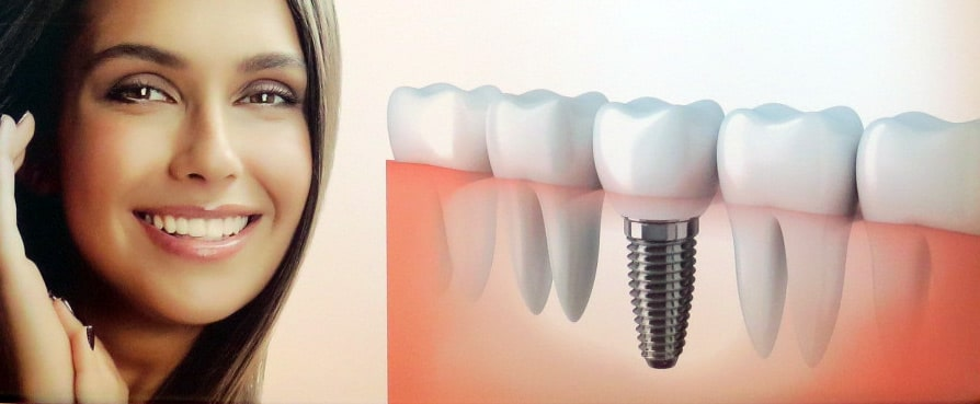 Trồng răng implant đà nẵng