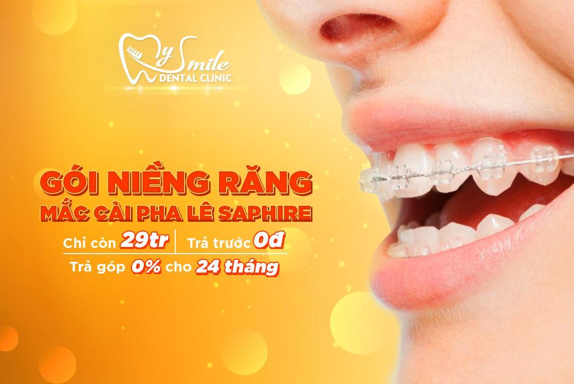 niềng răng uy tín tại Đà Nẵng